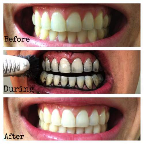 Ini Trik Ampuh Putihkan Gigi Dengan Aman Rizqy Agung Catering And